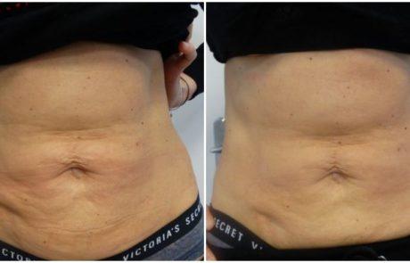 Efekt widoczny na brzuchu po pierwszym zabiegu Thuzzle